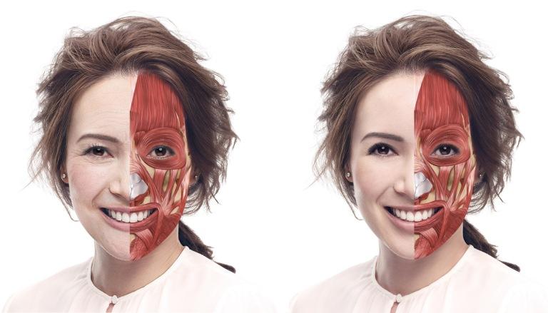 Botox-Juvederm1_skeleton_v1